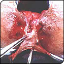 Anal Fissure Permanent Cure : Free on line guidance by our Shreyas Ano-rectal hospital & research centre
