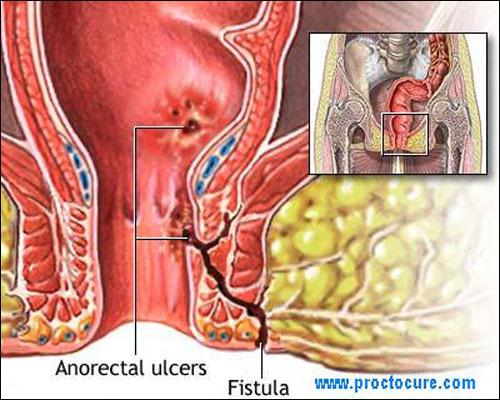 Shreyas Hospital - Fistula in Ano