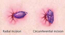 Hemorrhoidectomy - Shreyas Hospital - hemorrhoids