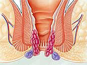 Shreyas Hospital - ano rectal cancer, rectal cancer, rectal cancer symptoms, cancer rectal, colon and rectal cancer, rectal cancer treatment, rectal tumor, rectum cancer, ano rectal cancer pictures, rectal cancer prevention, rectal cancer research -PPH Hemorrhoidectomy, Stapled Hemorrhoidectomy