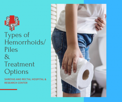 Types of Hemorrhoids Piles &Treatment options