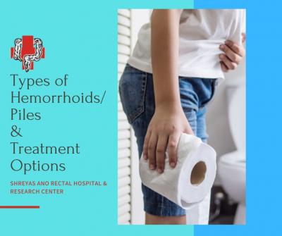 Types of Hemorrhoids Piles &Treatment options